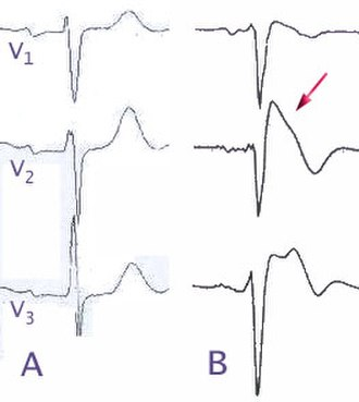 Ajmaline - (A) Normal electrocardiogram pattern in the precordial leads, (B) changes in Brugada syndrome. The arrow indicates the characteristic elevated ST segment.