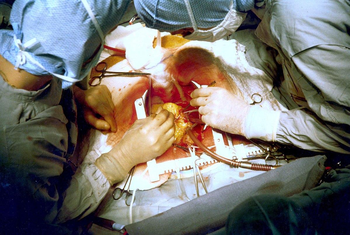 Cardiac surgery - Wikipedia