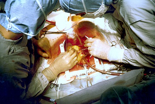 Coronary artery bypass surgery Image 657B-PH