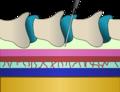 Epiduraldiagram.png