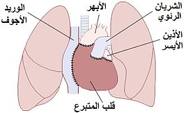 Heart transplant Arabic YM.jpg