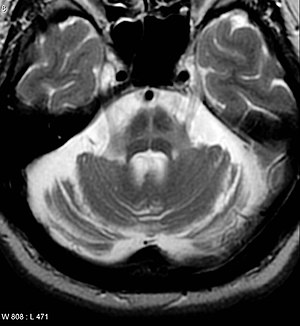 An MRI finding that is seen commonly in Multiple System atrophy. This occurs on the Pons.