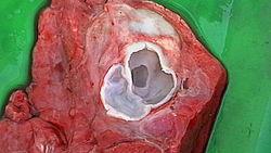 Снимка на разрязан хидатиден мехур в бял дроб на овца