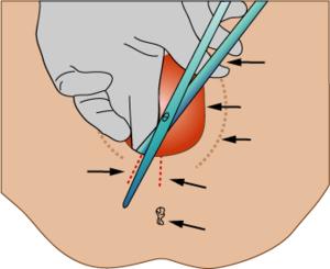 Scheurtjes perineum