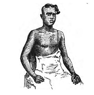 Nambudiri - 1883 sketch depicting a Nambūdiri man with the traditional pūrvaśikhā, or forelock