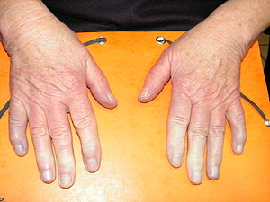 Syndrome de Raynaud