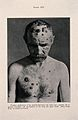 Syphilis; skin eruptions on head and chest, c 1905 Wellcome V0010347ER.jpg