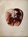 A diseased brain. Coloured aquatint by W. Say after F. R. Sa Wellcome V0009766ER.jpg