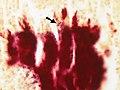 Actinomycosis - Gram stain (5286050326).jpg