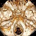 Aneurysma A cerebri media.jpg