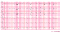 Arvd ecg1 (CardioNetworks ECGpedia).png