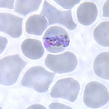 Band-form trophozoite of P. malariae in a thin blood smear.jpg