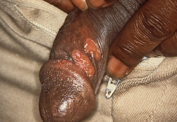 Primary chancre of syphilis at the site of infection on the penis Chancres on the penile shaft due to a primary syphilitic infection caused by Treponema pallidum 6803 lores.jpg