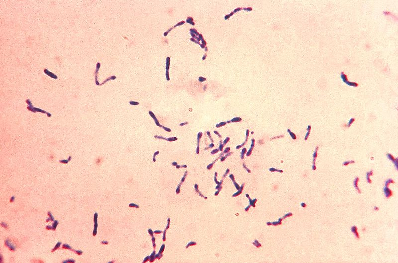 Archivo:Corynebacterium diphtheriae Gram stain.jpg