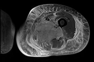 Diabetic myonecrosis - Axial fat suppressed T2 weighted MRI image showing hyperintense signal and enlargement of the left thigh adductor muscle group in diabetic myonecrosis.