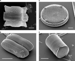 Scanning electron micrographs of diatoms showing the external appearance of the cell wall