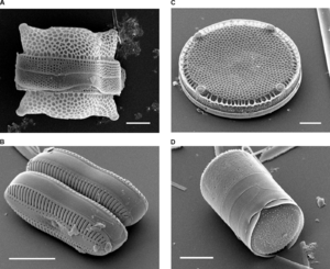 Cell wall - Scanning electron micrographs of diatoms showing the external appearance of the cell wall