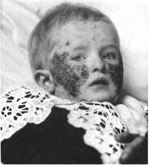 Eczema faciei