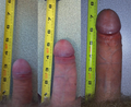Flaccid penis to erect compare.png