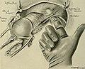 Gynecology (1916) (14779687682).jpg