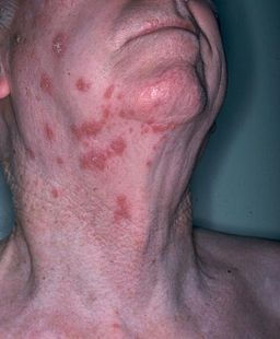 Herpetic shingles-virus
