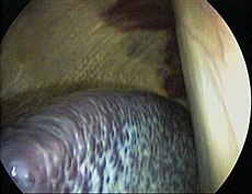 Horse spleen laparoscopic.jpg