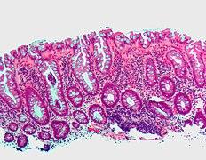 Bel a prostatitisből Fizioterápia Prostatitis Vélemények