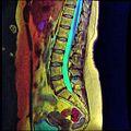 LSV MRI T1FSE T2frFSE STIR Case04 07.jpg