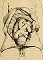 Manuel des accouchements et des maladies des femmes grosses et accouchées - contenant les soins à donner aux nouveaux-nés (1846) (14758469476).jpg