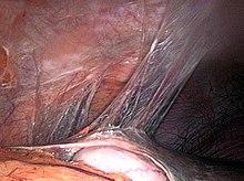 Aderenze tra la superficie del fegato e del diaframma nella sindrome di Fitz-Hugh-Curtis[24]