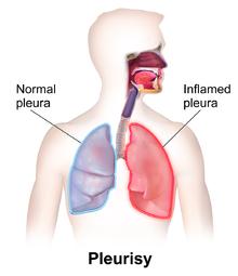 Pleurisy - Wikipedia