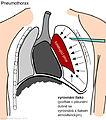Pneumothorax 001 cs.jpg