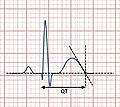 QT interval.jpg