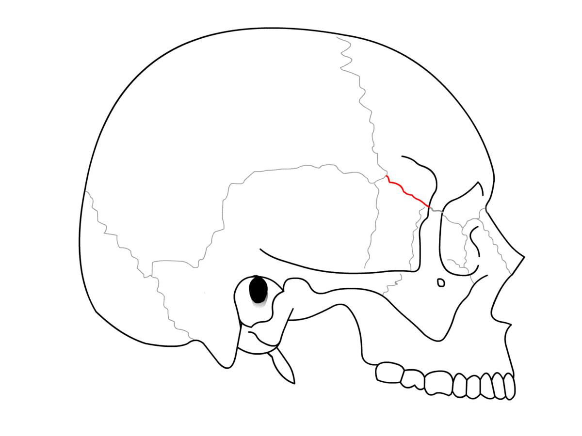 Sphenofrontal suture - Wikipedia