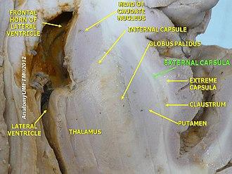 External capsule - Image: Slide 5gg