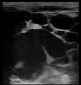 Ultrasound Scan ND 115254 1155260 cr.png