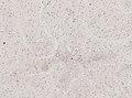 Wuchereria bancrofti (YPM IZ 093341).jpeg