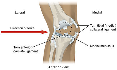 Knee wikipedia lateral trauma to the knee can cause torn medial collateral ligaments cruciate ligament injury as well as meniscus injury ccuart Gallery
