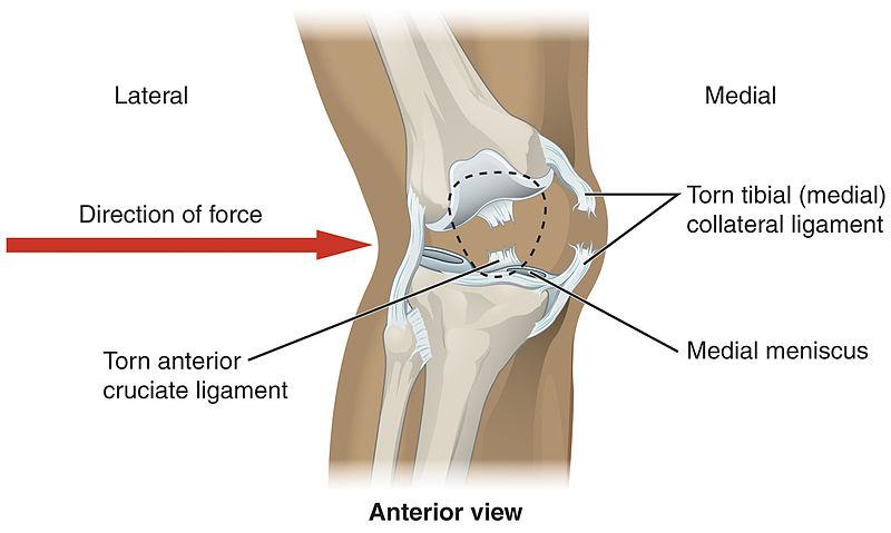 Knee - Wikiwand