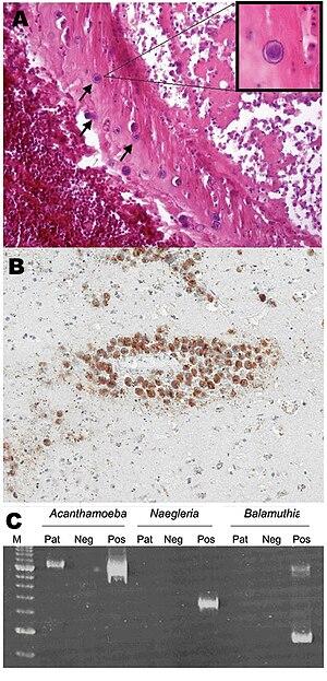 Acanthamoeba - Acanthamoeba encephalitis. Scale bar: 10 μm