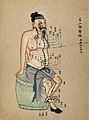 Acupuncture Chart Wellcome V0018491.jpg