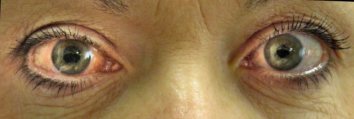 0b81528b58e31 Glaucoma – Wikipédia, a enciclopédia livre