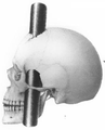 AmJMedicalSciences 1850July BigelowHenryJ DrHarlow'sCase PhineasGage frontispiece SideView.png