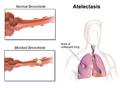 Atelectasis.png