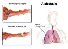 atelectasis - wikipedia, Cephalic Vein