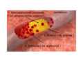 Aterosklerozė.png