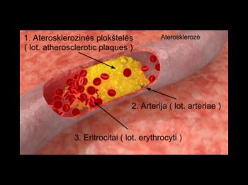 aterosklerozė � vikipedija