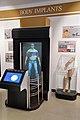 Body Implants - Emerging Technologies Gallery - Science Exploration Hall - Science City - Kolkata 2016-02-22 0416.JPG