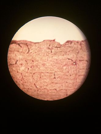 Osteon - Histology of Osteon.