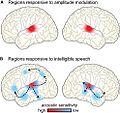 Brain regions responding to amplitude-modulated acoustic stimulation and intelligible speech Fpsyg-03-00320-g007.jpg